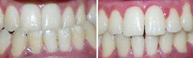 Orthodontics in Chennai