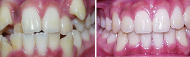 Orthodontics in Chennai