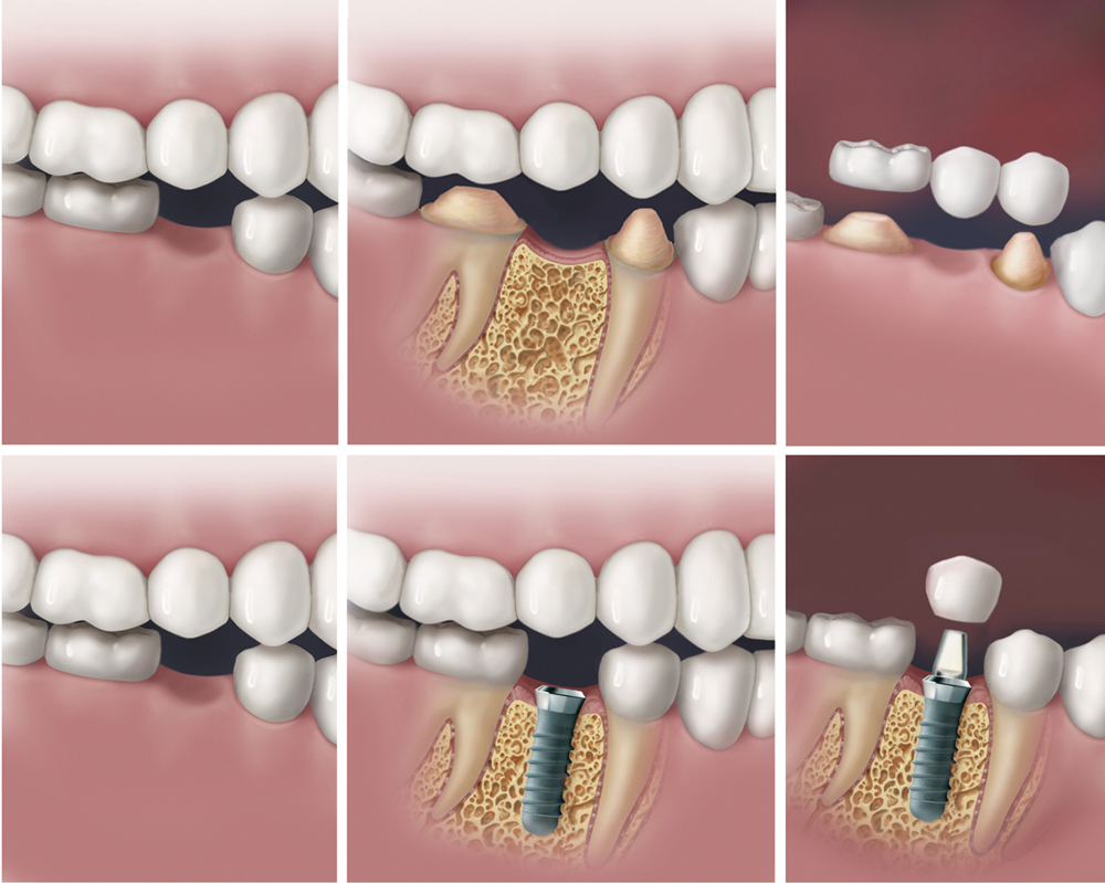 Teeth Replacement Process
