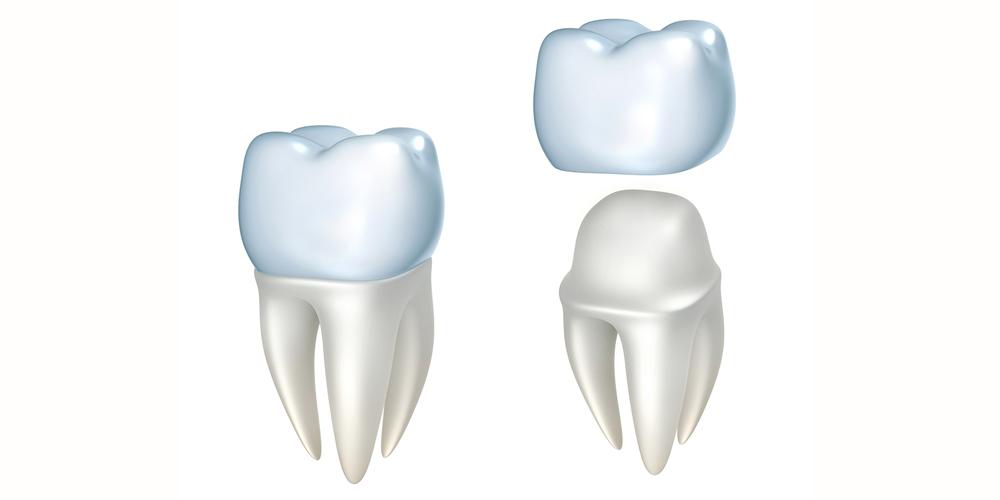 Teeth Fixing