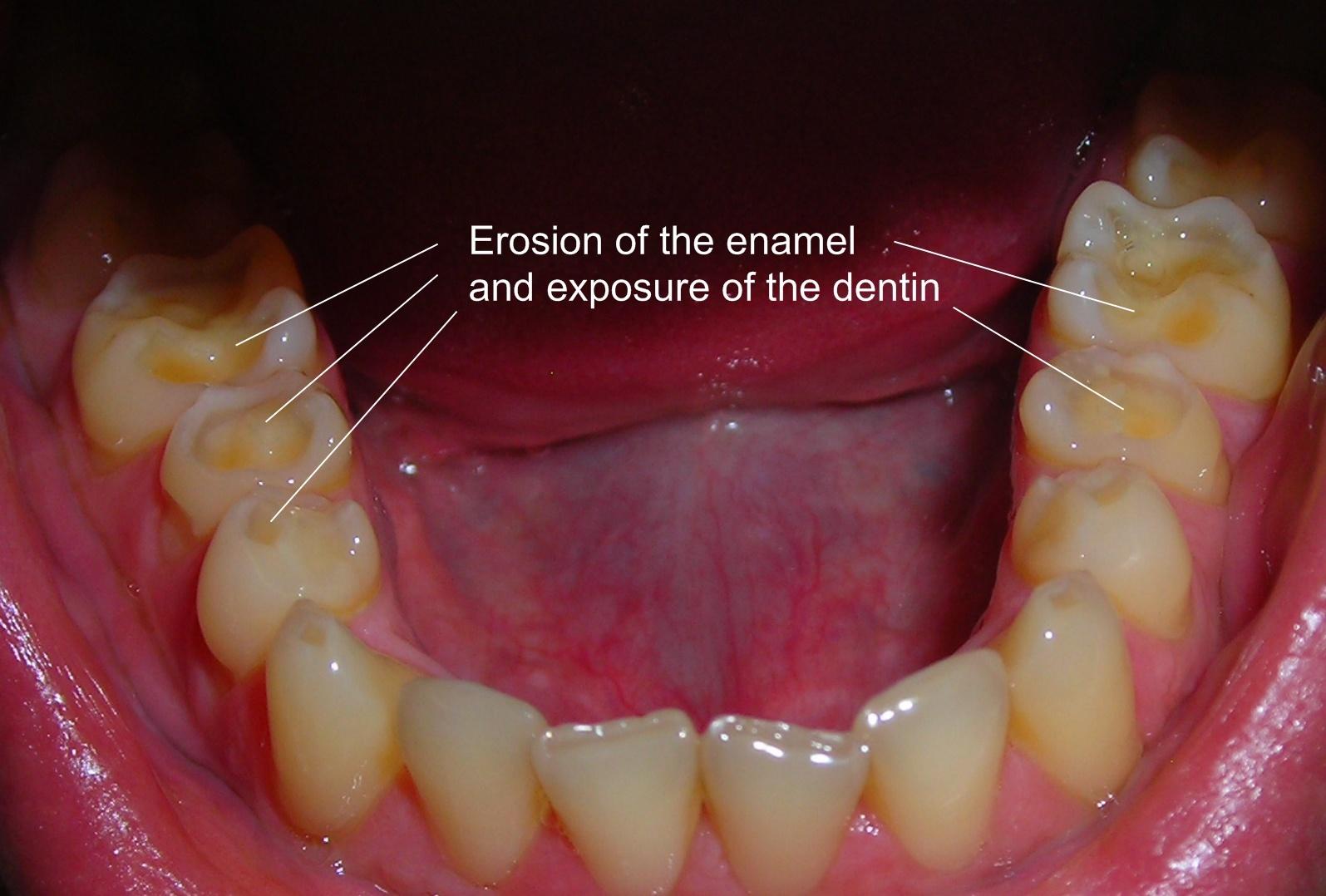 Enamel Erosion