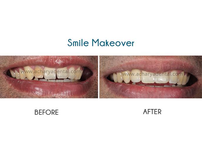 Smile makeover srikanth