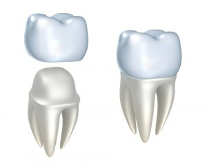crown cavities