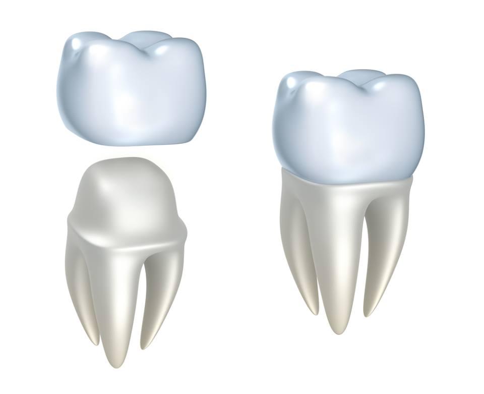crown cavities