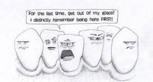 crowding of teeth