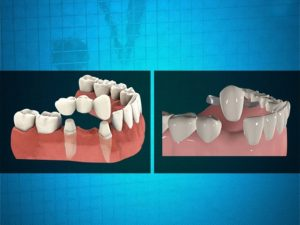 different types of bridges for your tooth