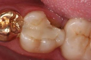 crown for your damaged tooth