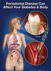 gum disease and diabetes
