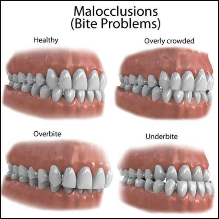 occlusion and malocclusion