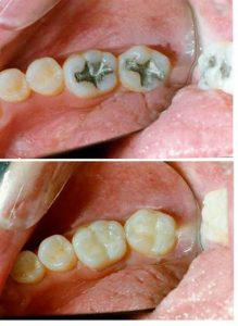 why do we need to get our teeth filled