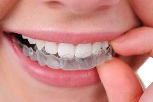 type of braces