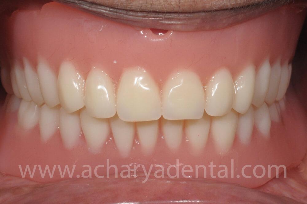 After Denture