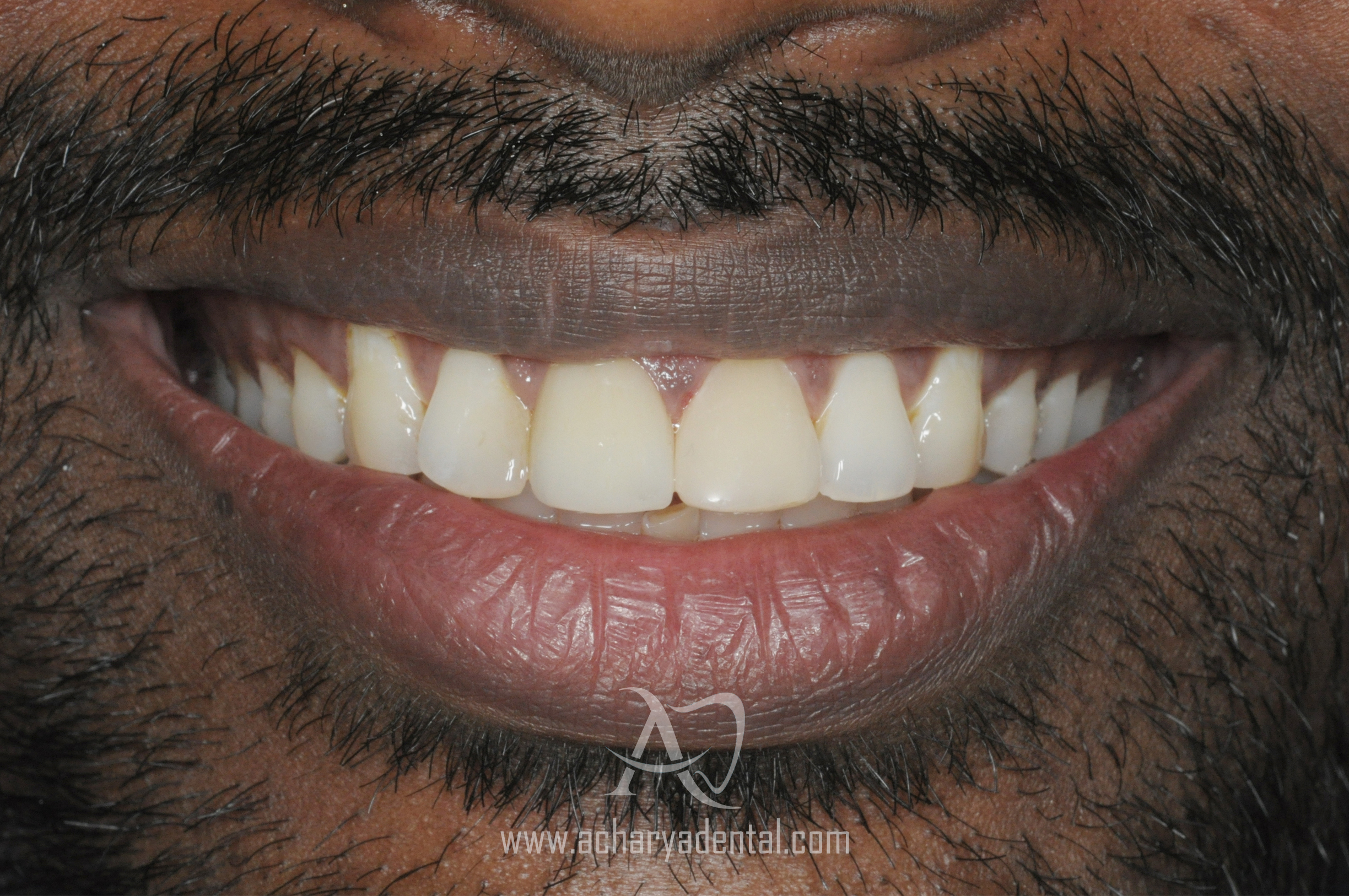 smile makeover post treatment