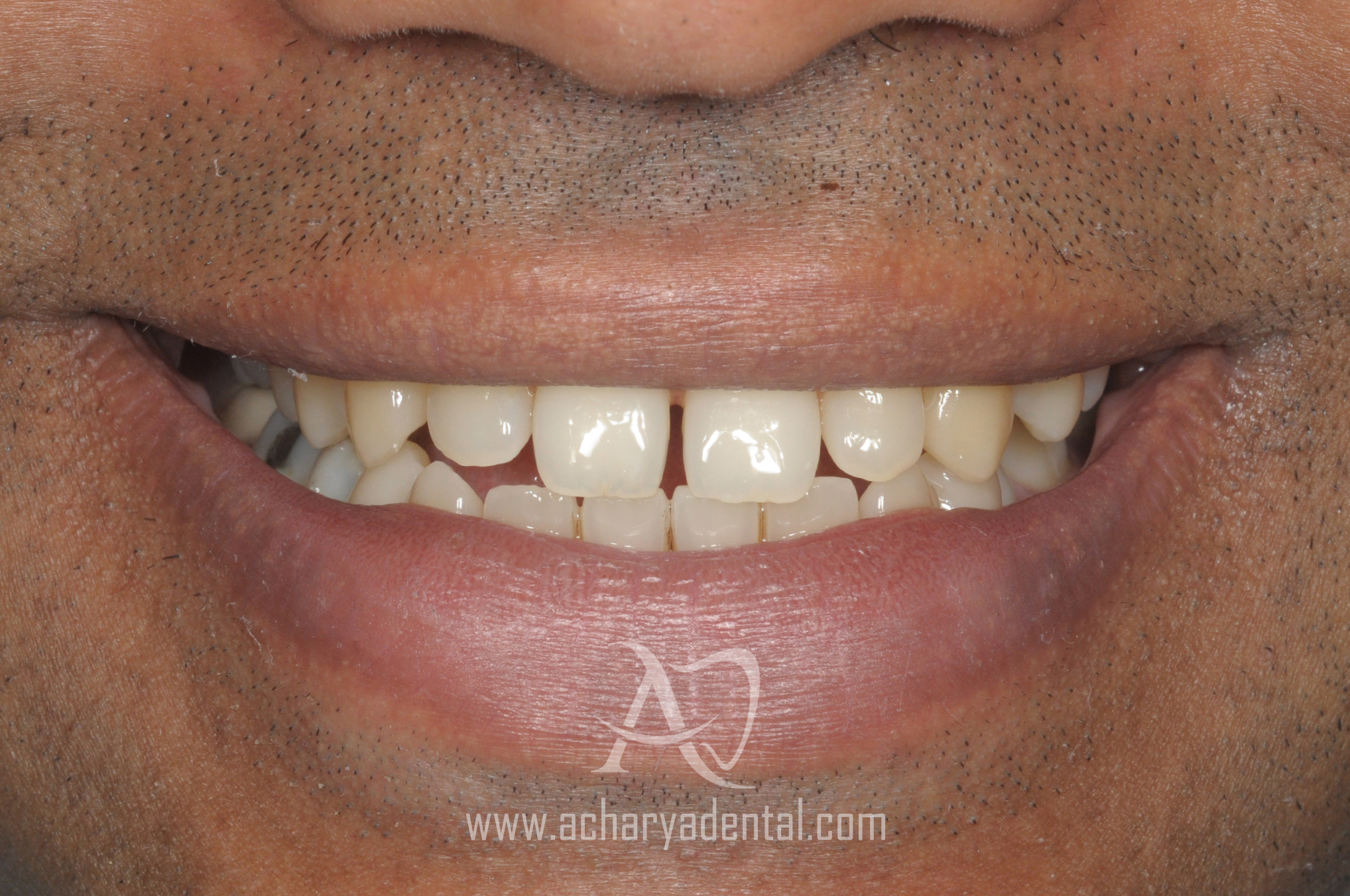smilemakeover before the treatment