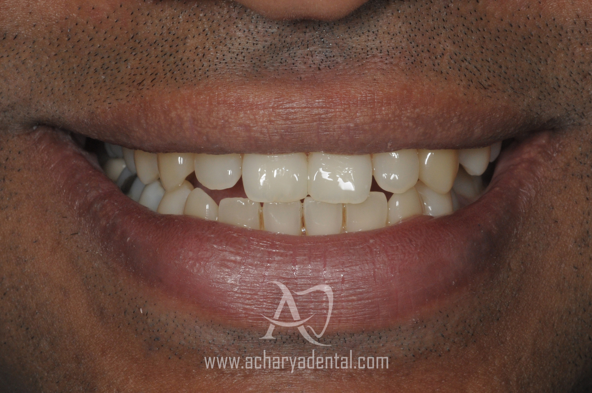 smilemakeover after the treatment