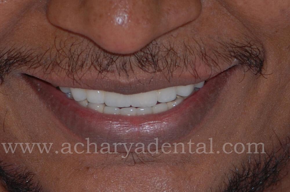 Dental_Implant_post