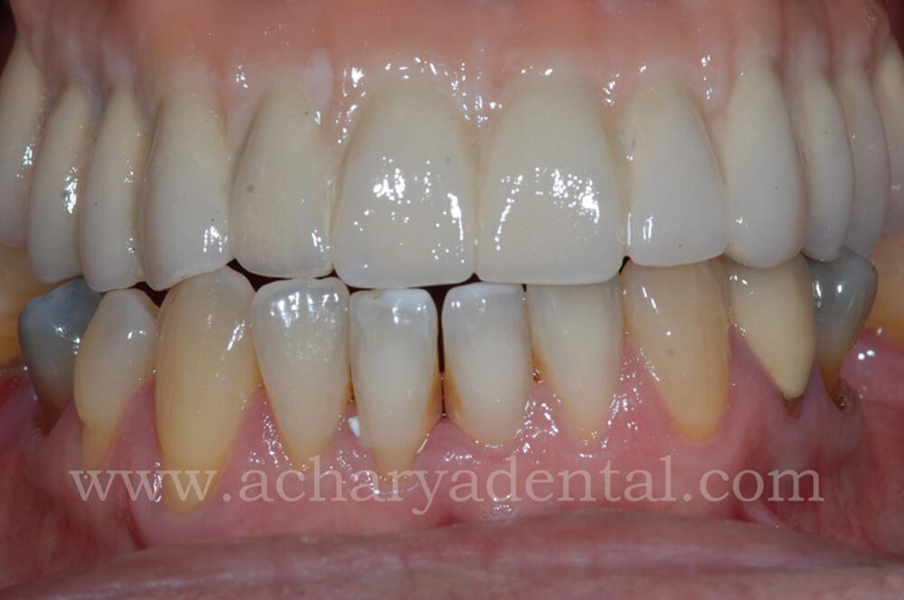 Dental Implant post treatment