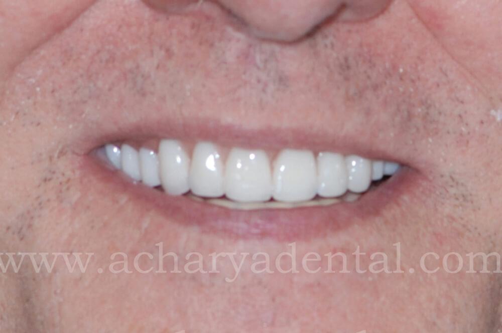 dental after diagnosis