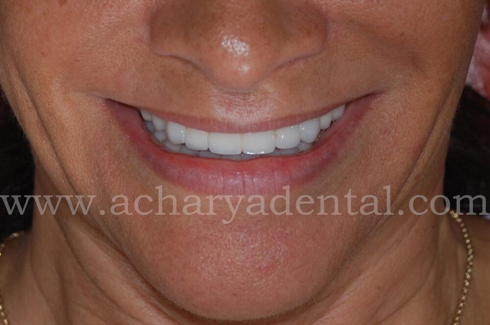 dental implant after diagnosis