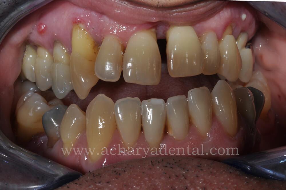 Dental Implant pre treatment