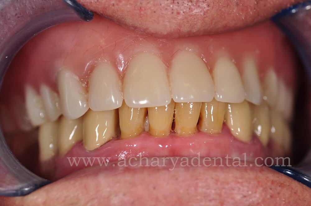 dental before diagnosis