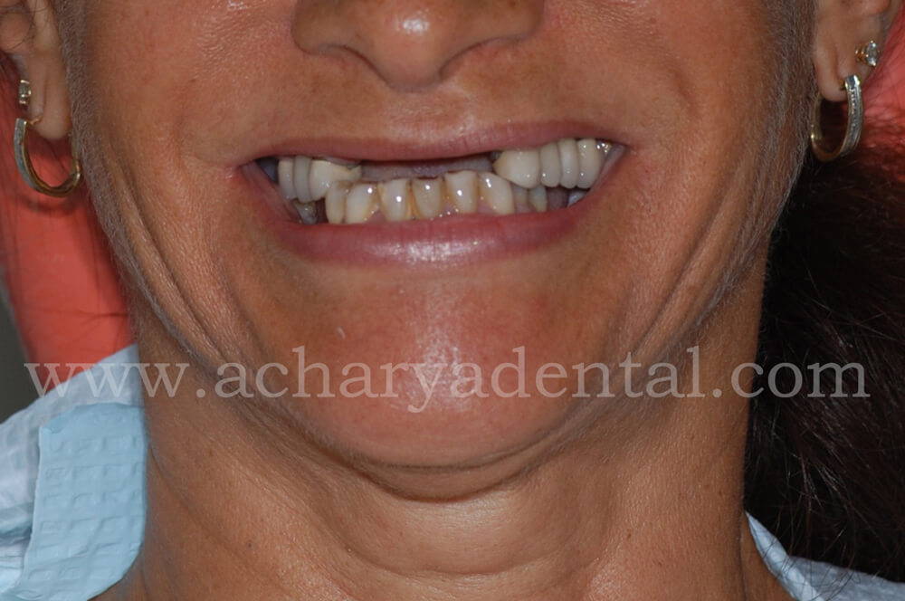 dental implant before diagnosis