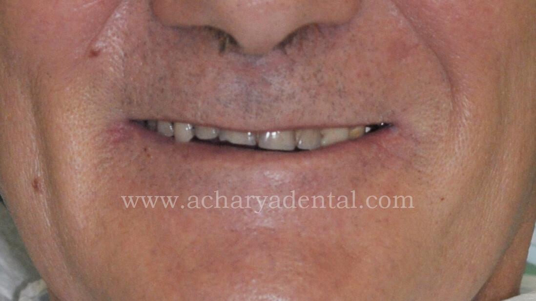Denture Pre