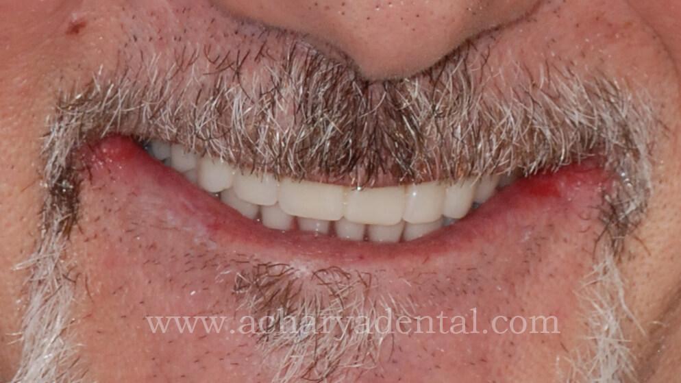 Denture Post