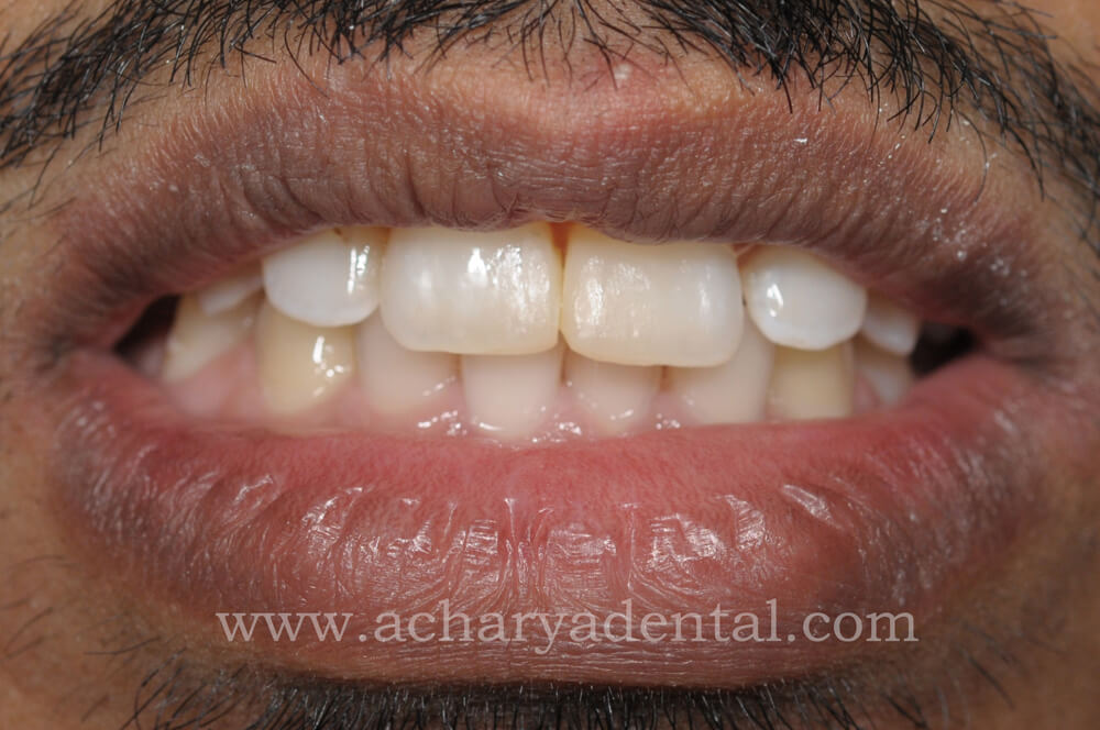 After Fillings Treatment