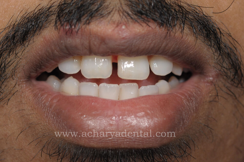 Before Fillings Treatment