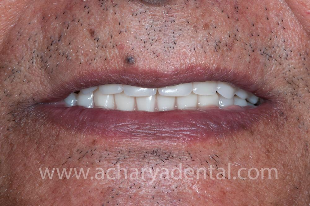 Post Denture