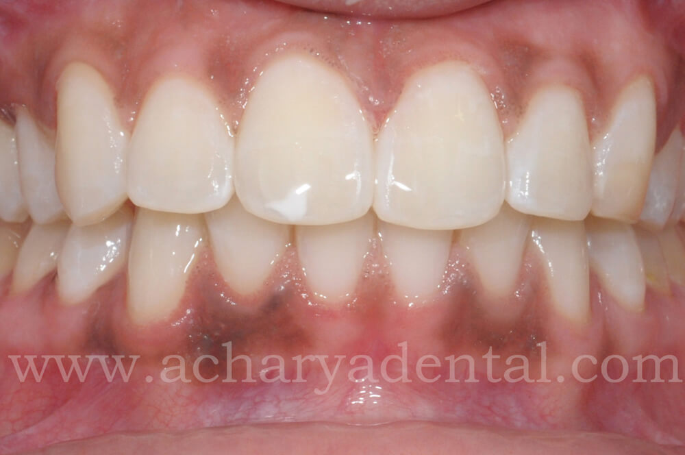 Teeth Whitening In Chennai Teeth Whitening Cost In Chennai