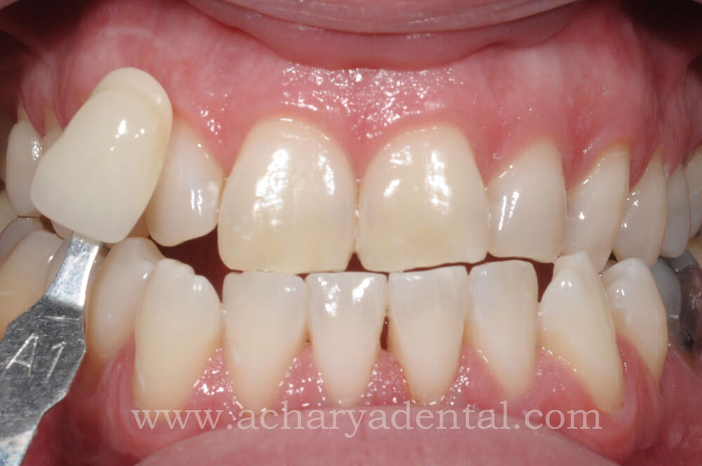 Whitening Treatment After