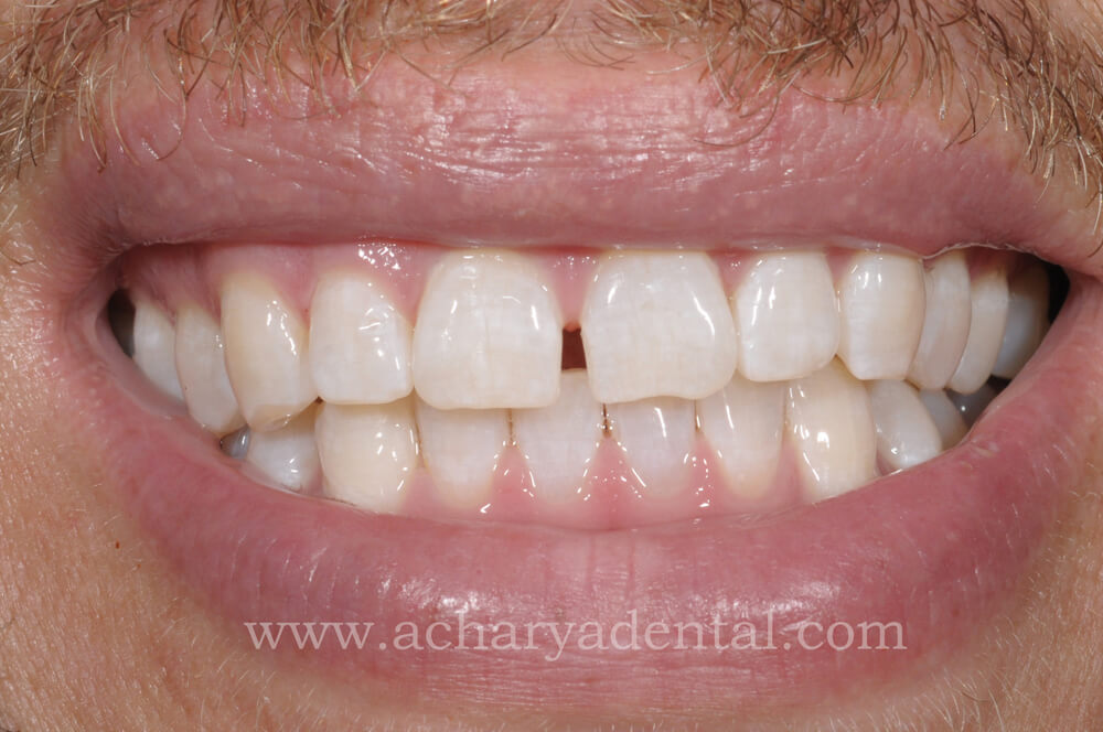 After Whitening Treatment