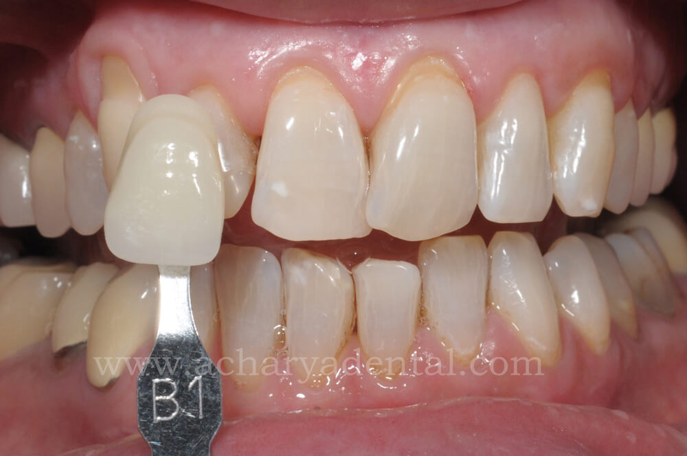 Post Teeth Whitening