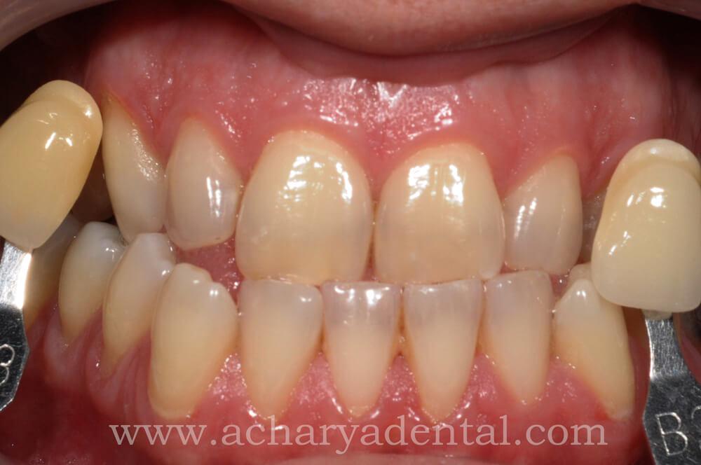 Whitening Treatment Before