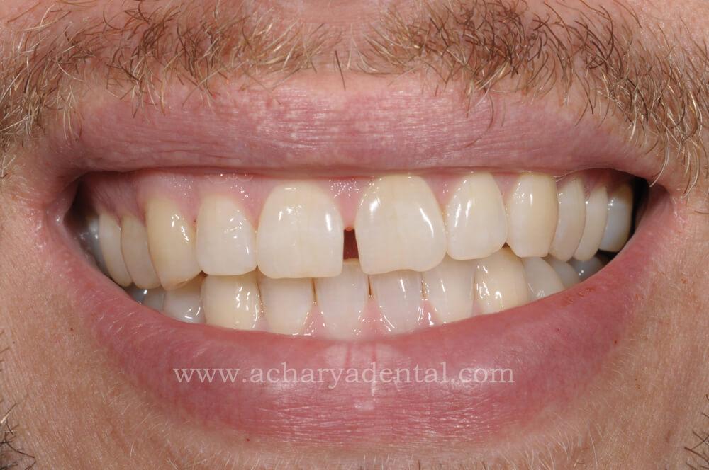 Before Whitening Treatment