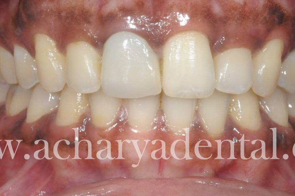 Whitening Pre Treatment