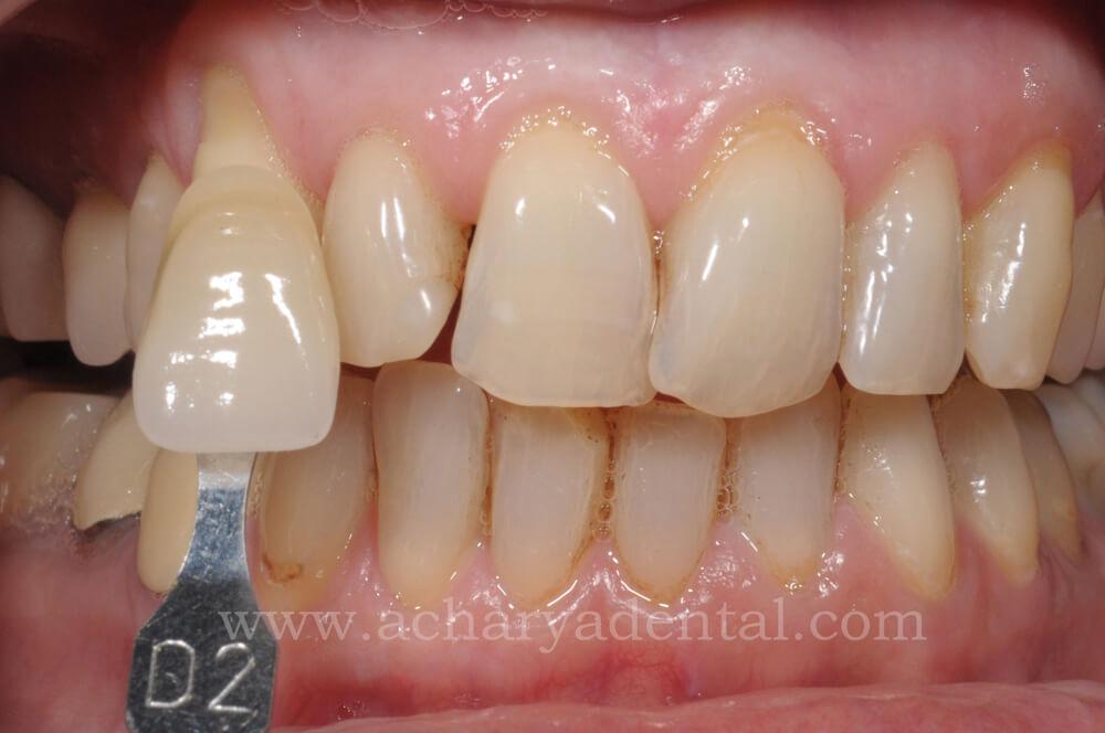 Pre Teeth Whitening
