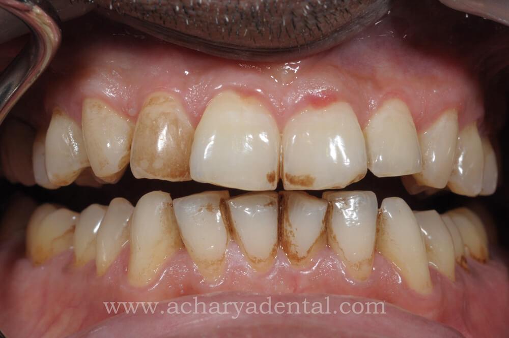 pre teeth cleaning