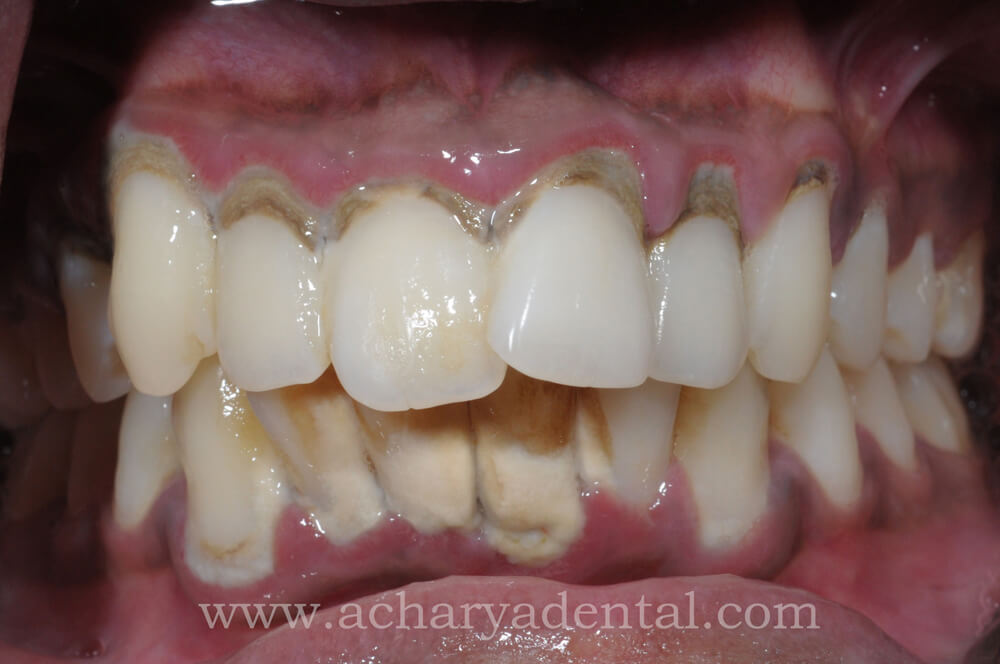 teeth cleaning before treatment