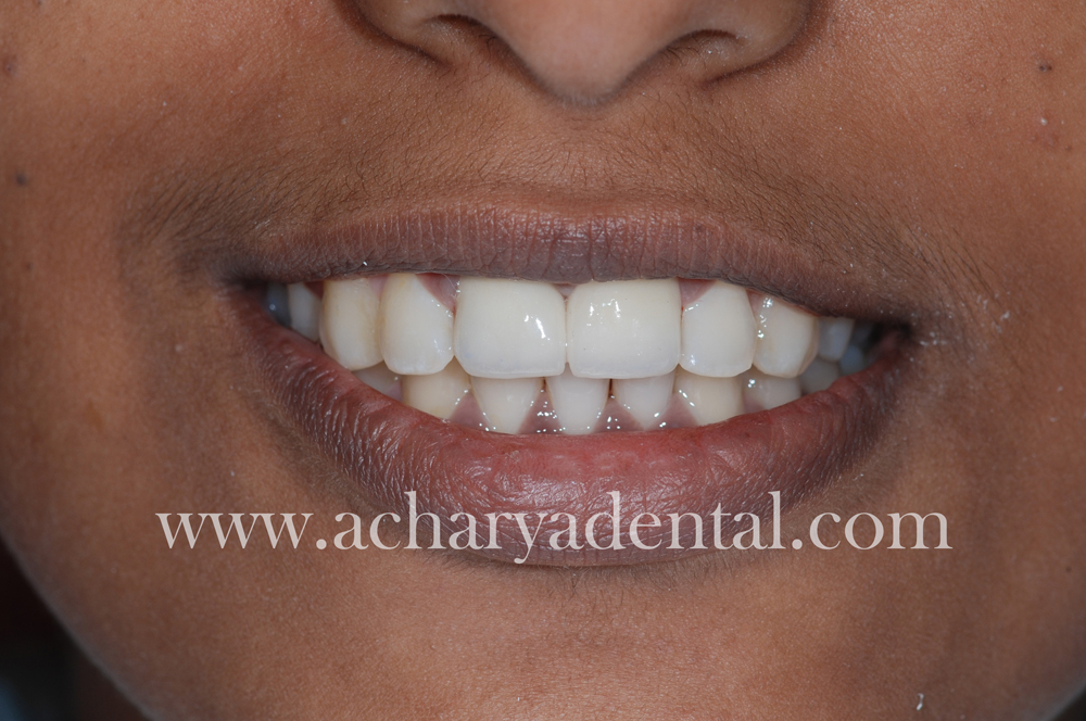 Tooth Replacement Crown after treatment