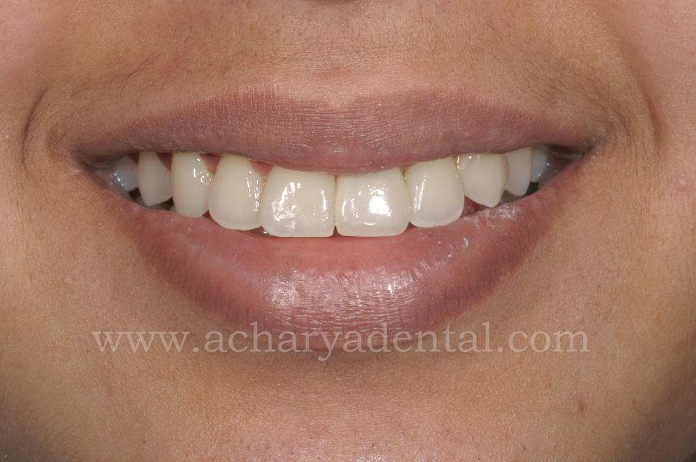 Tooth Replacement Crown post treatment