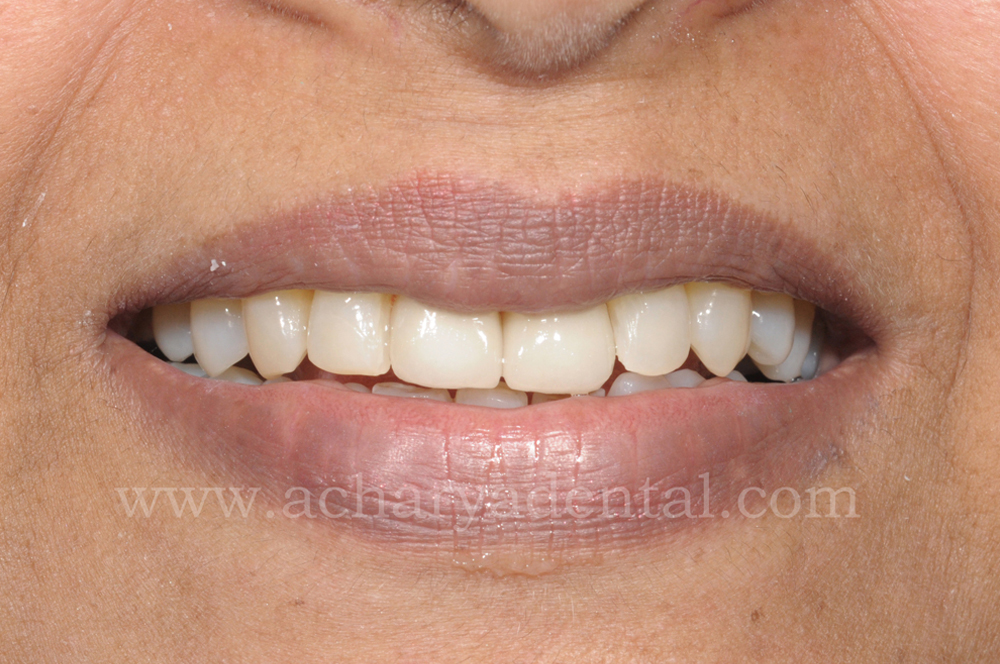 Before Tooth Replacement Crown