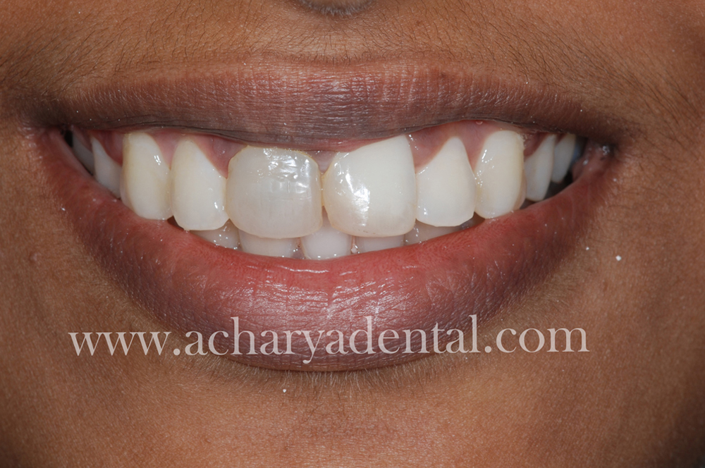 Tooth Replacement Crown before treatment