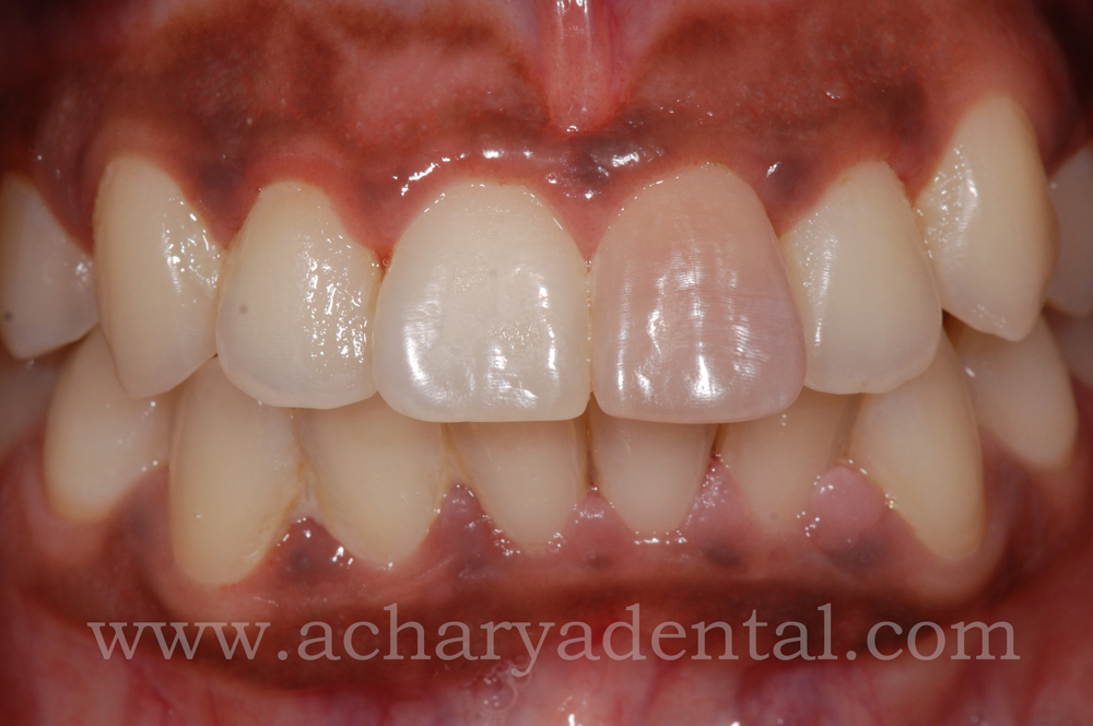 Tooth Replacement Crown pre treatment