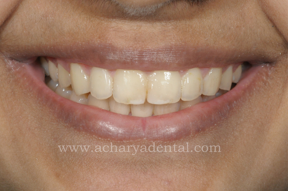 Tooth Replacement Crown pre