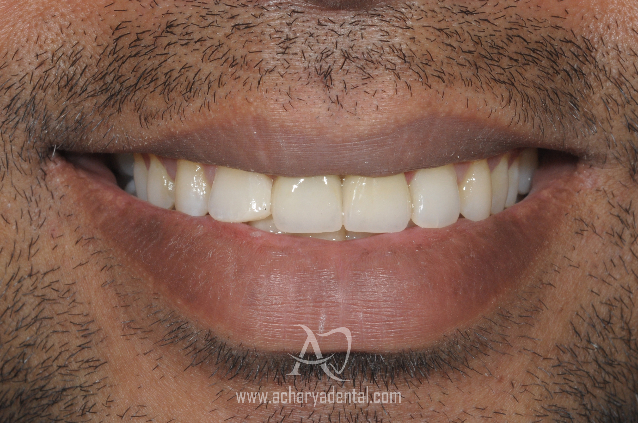 after smile makeover diagnosis
