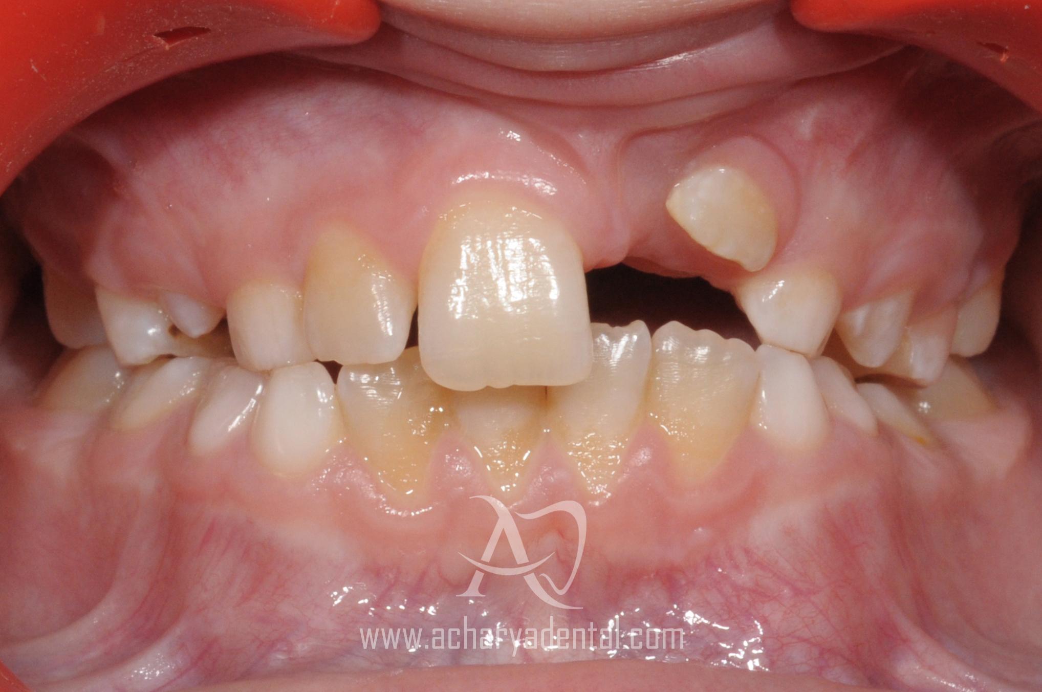 before orthodontics