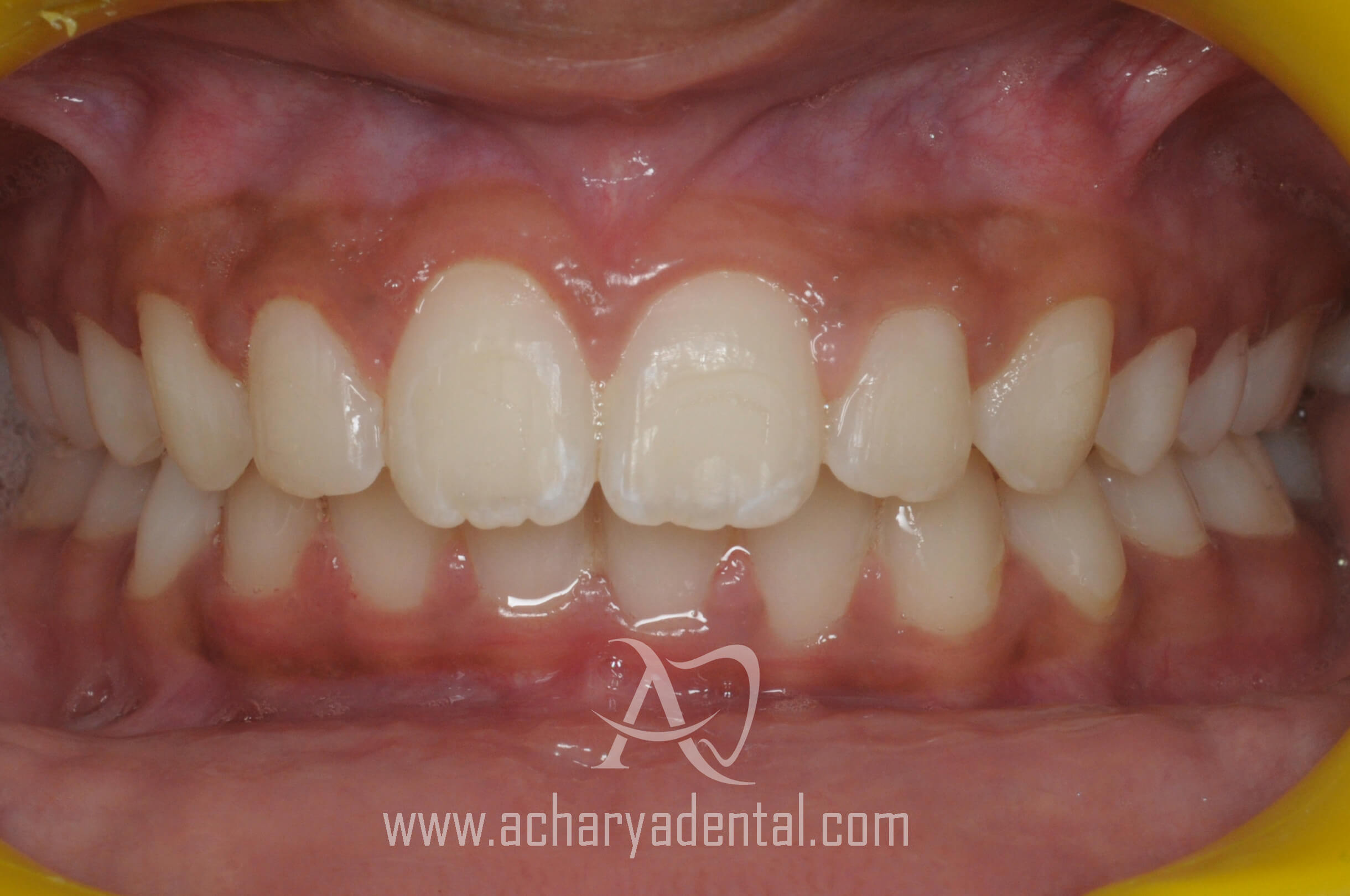 orthodontics treatment after